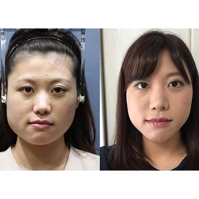 顔面矯正と小顔矯正3Dデザイン