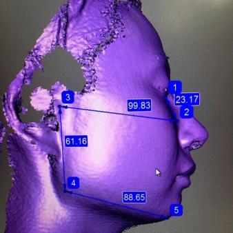 顔のゆがみ、形の検査(2D分析と3Dスキャナー)