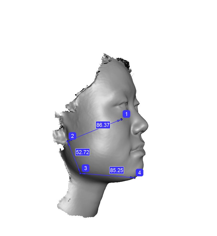 顔の歪み、形の検査(2D分析と3Dスキャナー)