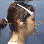 顔の歪み検査(2D分析)